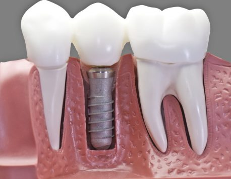 Best Dental Implant Center